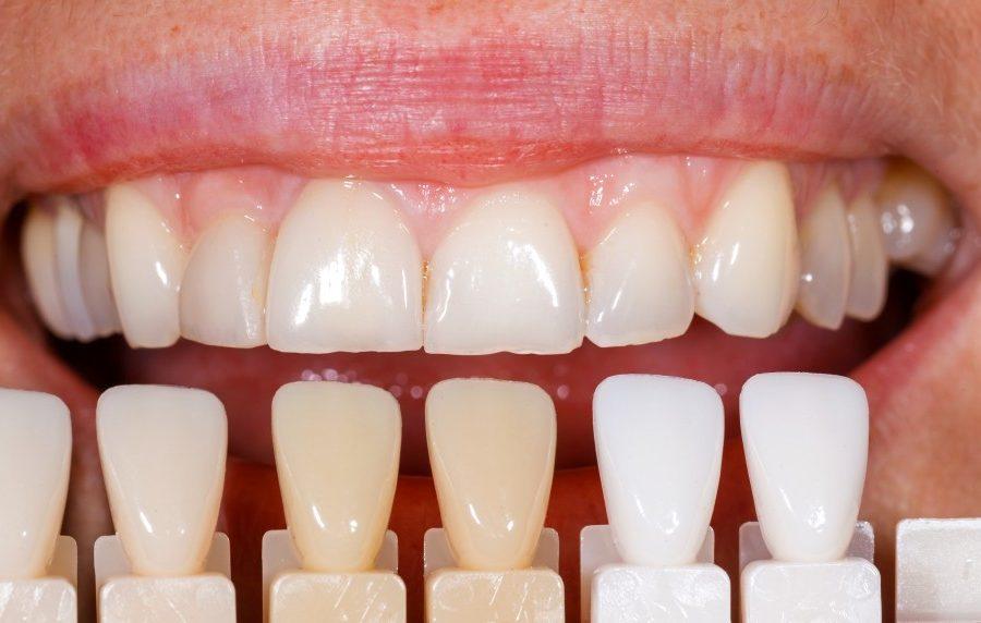 A few benefits of getting dental veneers?